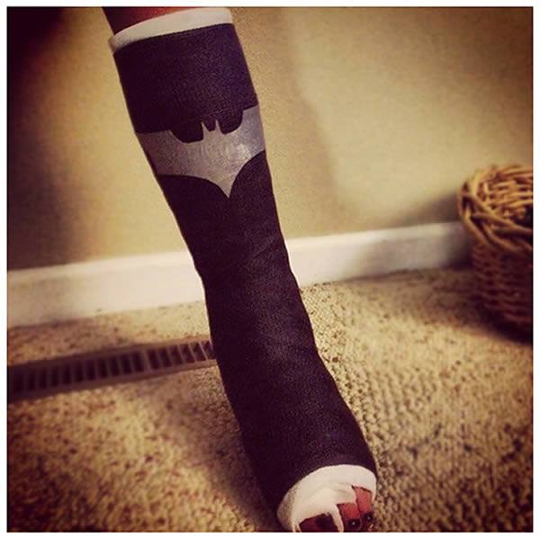 Better than the old way of decorating your fiberglass cast! Cover it with cool  cast tattoos called Casttoos